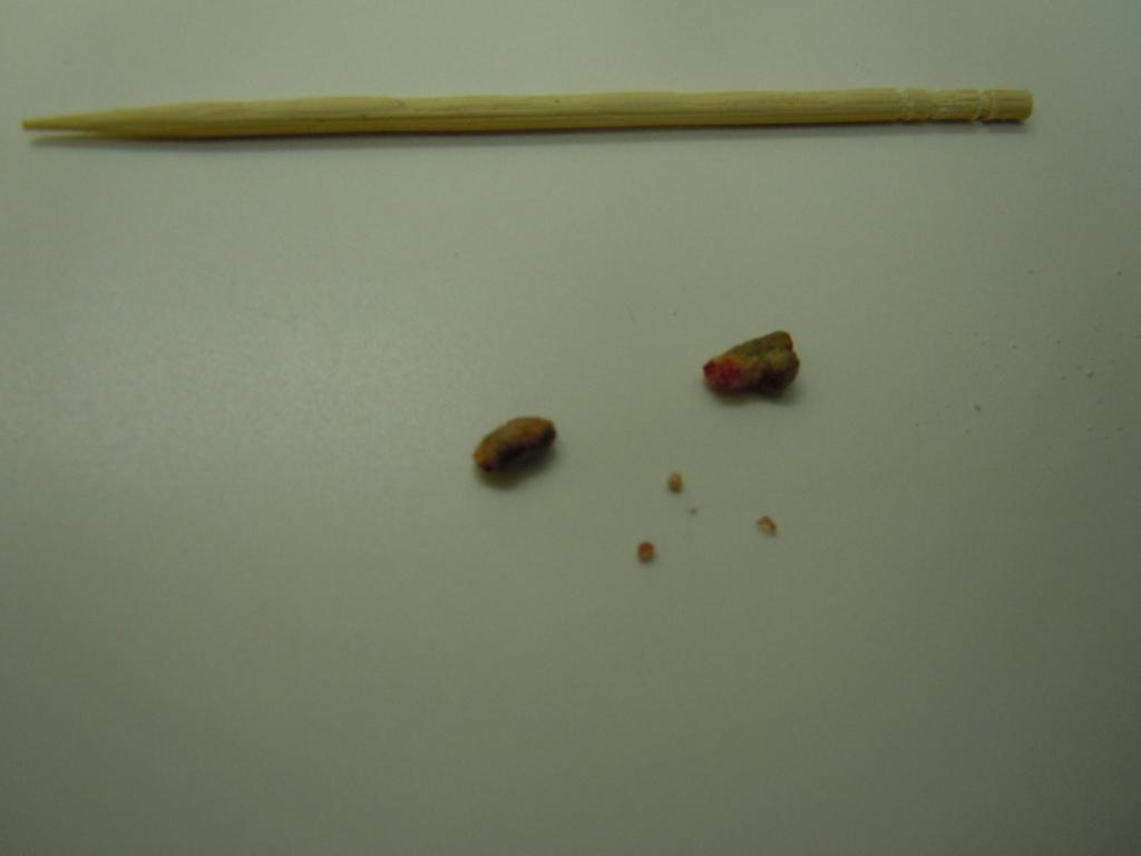 猫 尿管結石 腎結石